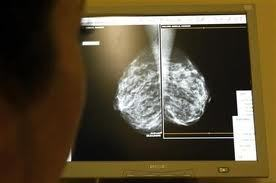 Computer model suggests genetic breast cancer screening may benefit those at intermediate risk | Breast Cancer News | Scoop.it