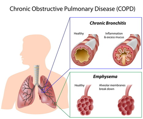 COPD – Know the Common Triggers | Salt Therapy | Scoop.it