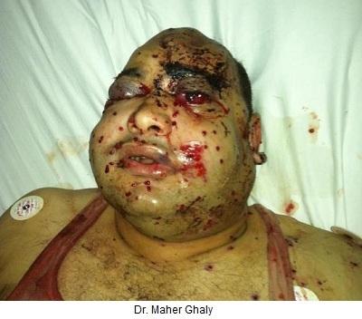 Un Copte tué pour avoir demandé à des musulmans de faire moins de bruit avec leurs armes   Democratic  Liberty   Scoop.it