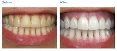 Natural teeth bleaching items | Makeup | Scoop.it