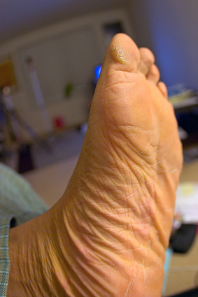 Research Using Homeopathic Polycrests In Diabetic Distal Poly Neuropathy - HWC   Alternative Science   Scoop.it