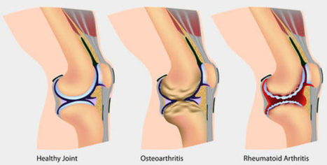 Fat in Knees May Trigger Rheumatoid Arthritis, Scientists Find | Biosciencia News | Scoop.it