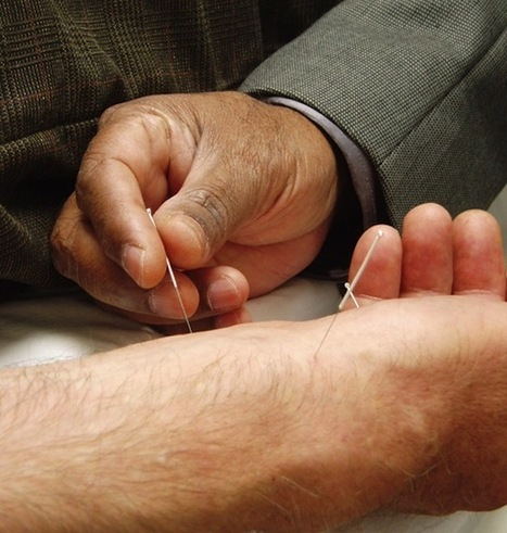 Acupuncture can help delay memory loss | Acupuncture, its benefits and risk | Scoop.it