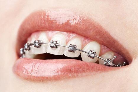metal braces cost sydney   Adam Scott   Scoop.it