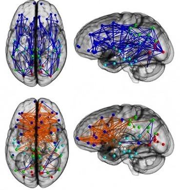 Cerveau d'homme, cerveau de femme : les différences observées au scanner | Scilogs.fr : L'actu sur le divanL'actu sur le divan | Neuromanagement et bien-être au travail : les neurosciences au service des humains de l'entreprise | Scoop.it