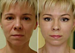 Strălucirea feței și a ochilor, estomparea pungilor de sub ochi, cearcăne, ochi roșii prin aplicarea unei măștii cu gel | Health & Beauty International | Health & Beauty - International | Scoop.it