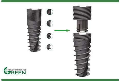 "Multi- modular dental implant ""Green Implant"" | Dental Implant and Bone Regeneration | Scoop.it"