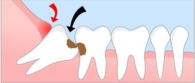 Impacted Wisdom Teeth | Dental Clinic In Delhi | Scoop.it
