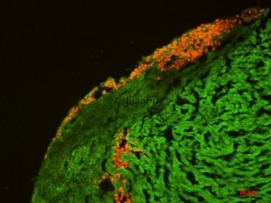 Stem cell therapy for heart failure: first implant of cardiac cells derived from human embryonic stem cells   Drug discovery and drug safety   Scoop.it