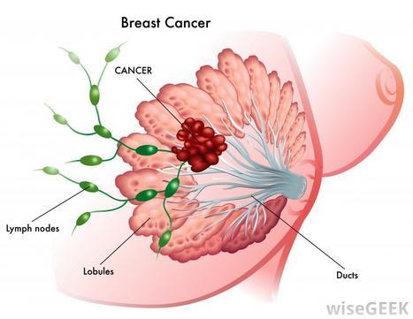 Exposure to Bovine Leukemia Virus Is Associated with Human Breast Cancer | Semiotic Adventures with Genetic Algorithms | Scoop.it