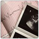 Choriocentèse (biopsie du trophoblaste) , Le Ministère de la Santé | Dépistage des maladies sur embryon | Scoop.it