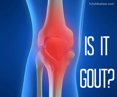 3 Signs of Gout and How to Treat It | The Basic Life | Scoop.it