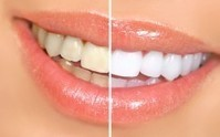 7 Natural Teeth Whitening Home Remedies for a Beautiful Smile | The Healthy & Green Consumer | Scoop.it