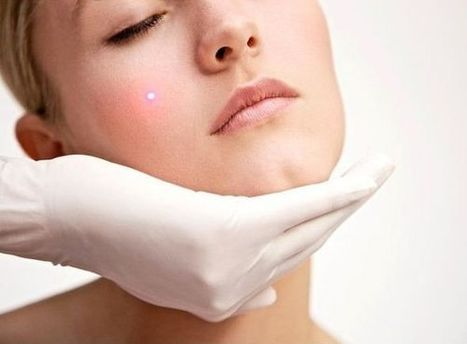 Benefits You'll Get From Laser Skin Treatment | Facts About Laser Resurfacing | Scoop.it