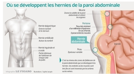 Hernies abdominales: une chirurgie pas si simple, mais 80% des actes en ambulatoire | Health , Preventive  health | Scoop.it