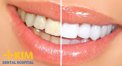 Làm trắng răng bằng Laser giúp răng trắng sáng gấp 5 lần chỉ sau 1 giờ   tocmaidephanquoc   Scoop.it