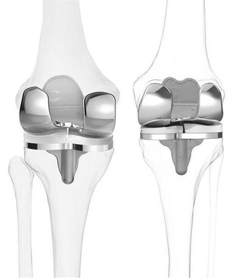 3D imaging and 3D printing help Washington surgeon build new knees for patients | 3D_Materials journal | Scoop.it