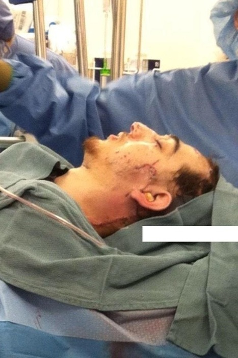 Updated Photo:Leaked! Hospital pic of Boston bomber suspect #2 | War Against Islam | Scoop.it