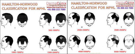 One Stop Solution Center for Hair Replacement, Hair Loss Treatment- Hair Restoration Services in Delhi | DermaClinix - The Complete Skin & Hair Solution Center | Scoop.it
