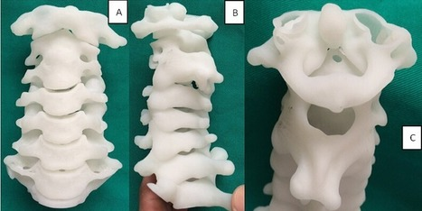 Chinese Surgeons 3D Print a Spine Replica to Help with Incredibly Delicate Surgery | 3D4Doctor | Scoop.it