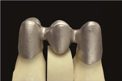 Laser Sintering is Replacing Traditional Processes in Dental Industry | Additive Manufacturing News | Scoop.it