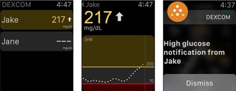 Monitor real time glucose readings on Apple Watch | Digital Healthcare | Scoop.it