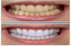 Blanqueador de dientes, Resultado en sólo 10 días o menos   Blanqueador de dientes   Scoop.it