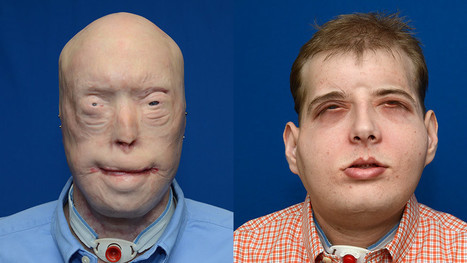 26-Hour Face Transplant Made Possible with 3D Printing | 3D_Materials journal | Scoop.it