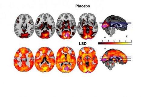 Cerveau : les effets du LSD observés pour la 1ère fois   physique quantique et science du réel   Scoop.it
