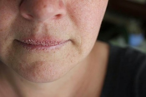 How to Heal Dry and Chapped Lips the Natural Way | Home Remedies for Your Perfect Health | Scoop.it