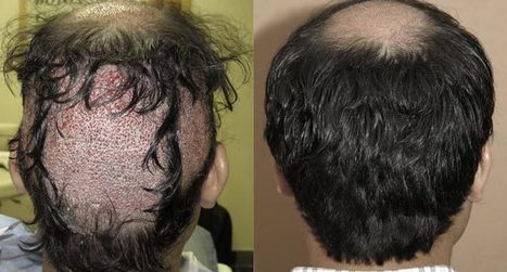 Permanent Hair Growth Solution – Hair Transplant Surgery   Royal Cosmetic Surgery   Scoop.it