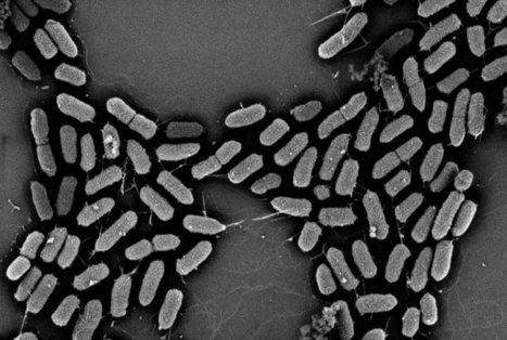 E. coli more virulent when accompanied by beneficial bacteria | Media Cultures: Microbiology in the news | Scoop.it