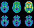 Biomarker Roadmap for Alzheimer's Established - Technology Review | Medically speaking | Scoop.it