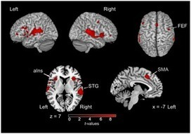 Neural Correlates of Sound Localization in Complex Acoustic Environments | Social Foraging | Scoop.it