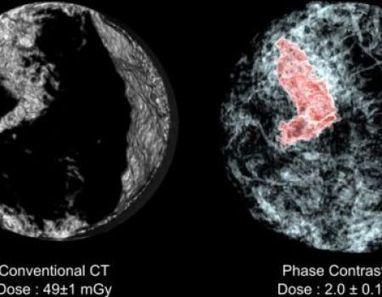 Demuestran que Quimioterapia es la gran equivocación médica   Novedades sobre la Salud y Medicina   Scoop.it