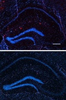 Cancer drug shows promise in reversing Alzheimer's symptoms in mice | KurzweilAI | Brain-1 | Scoop.it
