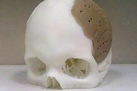 Man has 75% of skull replaced by 3D-printing | Future Technology - 3D Printing | Scoop.it