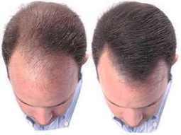 Saç Dökülmesi Kesin Çözüm Mümkün Mü?   Saç Kaybı   Scoop.it
