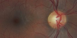 Smarter Contacts, No More Needles | The Scientist Magazine® | Corneas & Contacts | Scoop.it