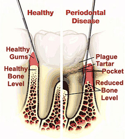 Non Surgical Periodontal Treatment Norwalk | Periodontics Long Beach | Dental_Related | Scoop.it