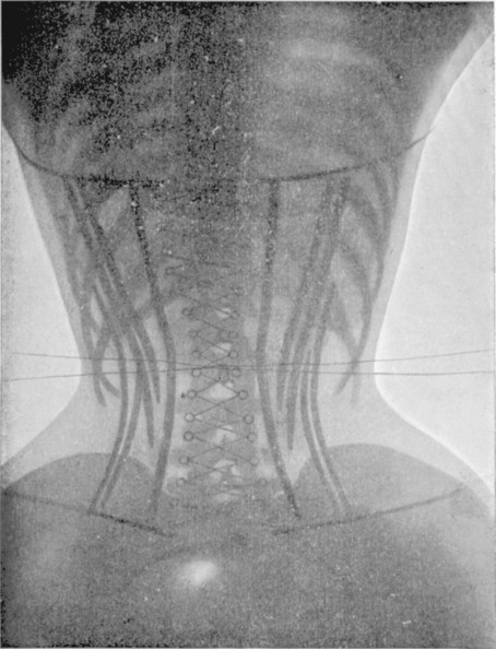 Les corsets de 1908 au rayons X - La boite verte | Théo, Zoé, Léo et les autres... | Scoop.it