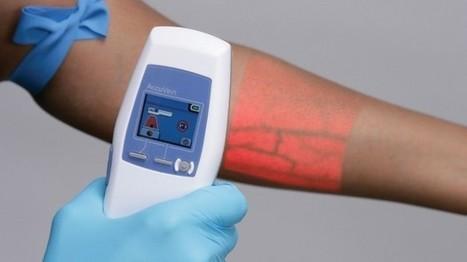 Un dispositivo de luz permite que las venas sean visibles | Blood Donation News | Scoop.it