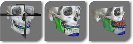 Medical Modeling VSP 3D Facial Reconstruction System Cleared by FDA | Amazing Science | Scoop.it