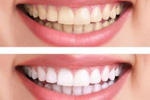 Get to know all about Zoom II whitening in Thailand   Dental Treatment Thailand   Scoop.it