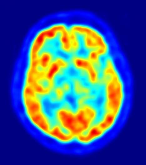 Analyser le cerveau pour évaluer les risques de récidive criminelle | technoscience | Scoop.it