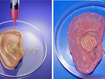 The Disgusting, Amazing Printed Ear - Reason.com | Medical applications for 3D Printing | Scoop.it