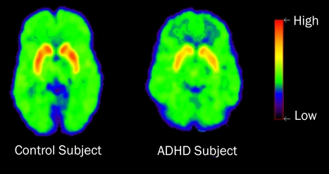 What do ADHD and cancer have in common? Variety | Psychology and Brain News | Scoop.it