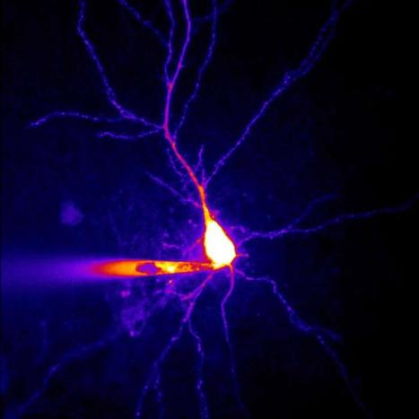 A New Mechanism for Epilepsy Discovered | Social Neuroscience Advances | Scoop.it