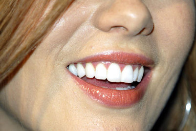 How to whiten your teeth naturally - The New Age Online | How to Make Whiter Teeth | Scoop.it