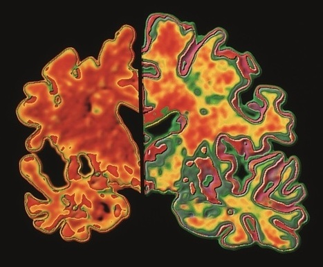 Data suggest that new Alzheimer's drug solanezumab has disease-modifying ... - The Pharmaceutical Journal | Social Neuroscience Advances | Scoop.it